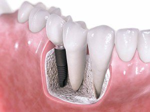 dental implants, arizona dentist