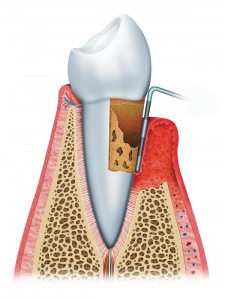 are you missing the signs of gingivitis?