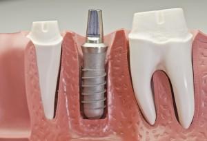 Dental Implants to Restore