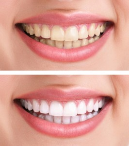 the history of tooth whitening