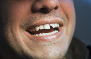 what to do if you chip or break a tooth