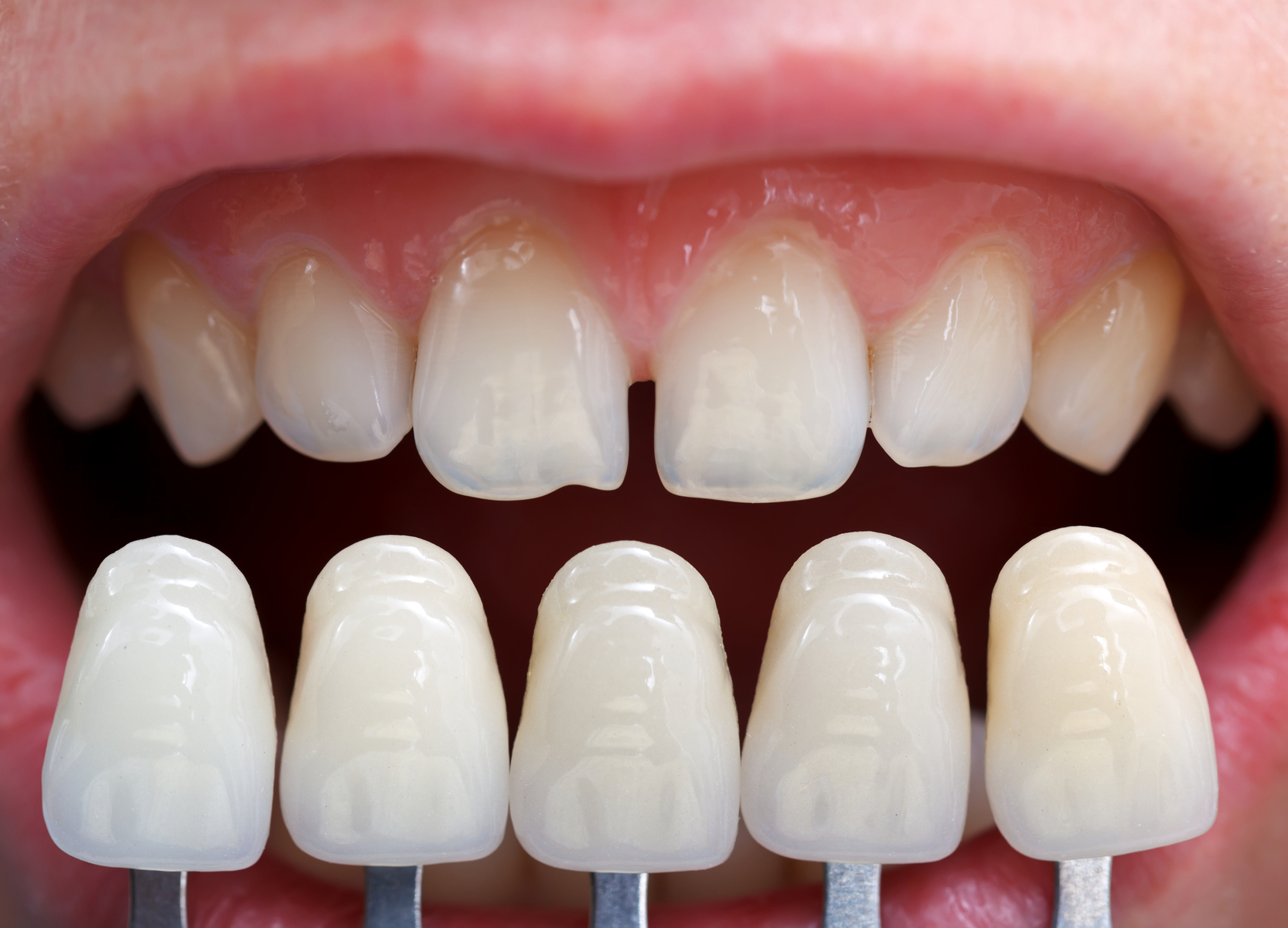 Dental Solution Veneers Or Caps Which Is Better