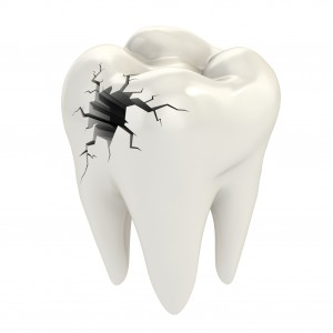 Emergency Dental Services From Your Phoenix Family Dentist, DC Dental