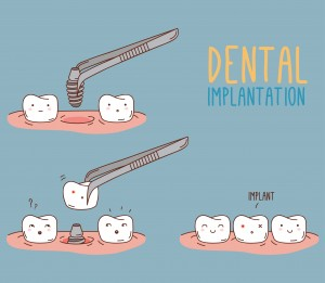 dental implants can stop bone loss