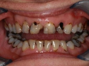 tooth decay pictures