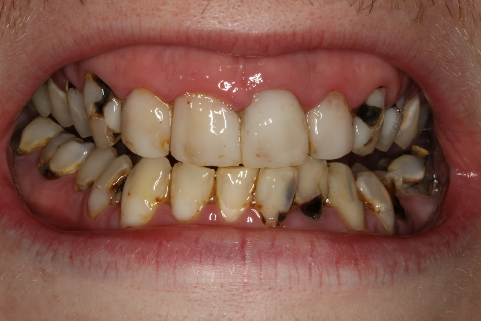 Pictures Of Tooth Decay 53