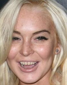 celebs with bad teeth
