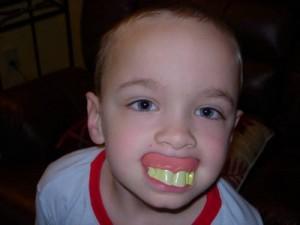 parents prevent cavities