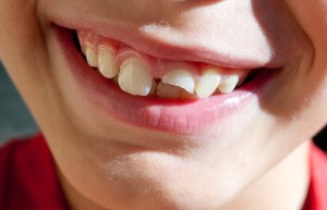 chipped tooth? see your chandler, az dentist!
