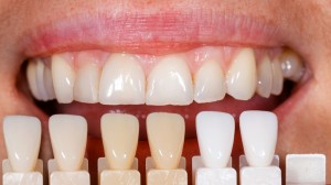 low cost dental work in phoenix