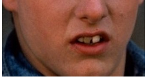 mystery celeb bad teeth