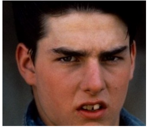 tom cruise bad teeth