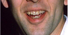 celebrity bad teeth