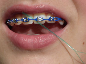 flossing with braces